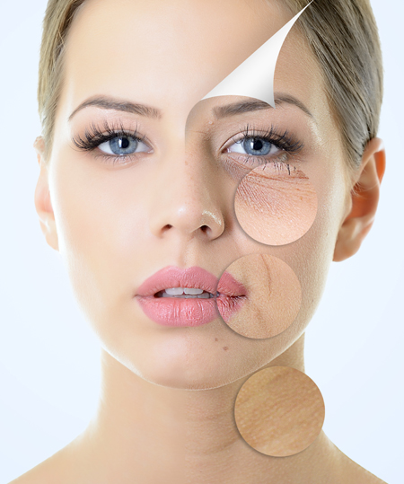Regeneracion facial lyposmol